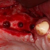 3. Ostéotomies