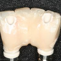 Fig. 14 : Appareil provisoire nettoyé et fini par le prothésiste
