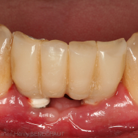 Fig. 16 : Résultat à trois mois post-opératoire de la mise en charge immédiate