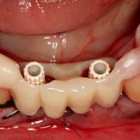 Fig. 8 : Bridge provisoire calé sur les dents voisines grâce à des ailettes