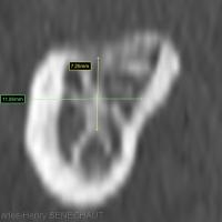 Image 4 : Patient 2 : Coupe coronale passant en 46 : Hauteur (7,5mm) au dessus du NAI et Largeur de crête (11mm).