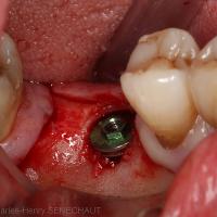 Image 12 : Implant court en place (hexagone externe)