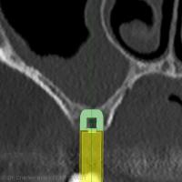 Image 2 : Simulation implantaire