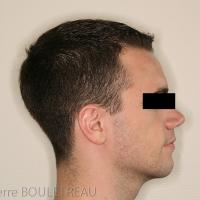 Vue de profil en post-opératoire