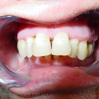 Articulé dentaire initial