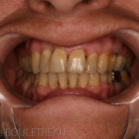 Articulé dentaire post-opératoire