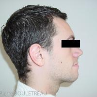 Vue de profil initiale