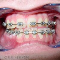 Articulé dentaire pré-opératoire (et après préparation orthodontique)
