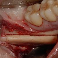 Fg 4 : Prélèvement mandibulaire postérieur