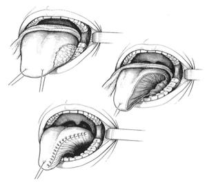 Fig. 2 - Hémiglossectomie : fermeture par suture directe