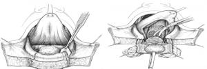 Fig. 3 : Cancer du plancher buccal antérieur: exérèse par pelvi-glosso-mandibulectomie interruptrice