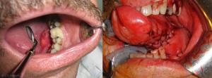 Fig. 4 : Hémi-pelvi-glosso-mandibulectomie gauche