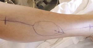 Figure 3 : Repérage cutané du prélèvement du lambeau de fibula
