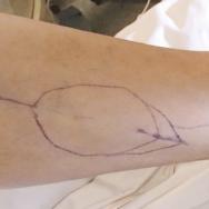 Repérage cutané du prélèvement du lambeau de fibula