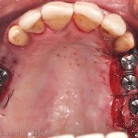 Fig. 4. Stabilité du lambeau gingival de demi-épaisseur positionné sur le versant vestibulaire de la crête.