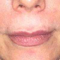 Pré-opératoire - Vue de face