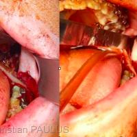 Fig 1 : A gauche dissection de la branche montante, extraction du germe de la dent de sagesse par fragmentation, protection du nerf alvéolaire inférieur, à gauche ostéotomie courte réalisée