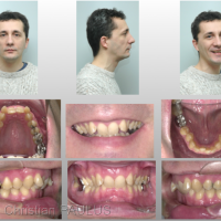Fig 2 : Classe II subdivision encombrement : indication d'un traitement orthodontico-chirurgical avec alignement nécessitant une distraction bimaxillaire, ostéotomie de propulsion mandibulaire, finition orthodontique. Orthodontiste Dr. Jean-Luc Ouhioun