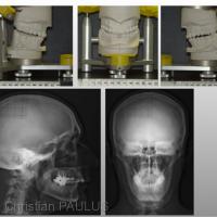 Fig 5 : Projet chirurgical et préparation des gouttières