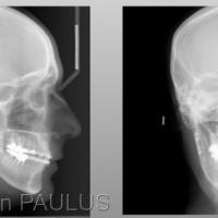 Fig 7 : 1 an après l'ostéotomie courte de propulsion mandibulaire