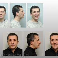 Fig 9 : Clinique avant – après. Orthodontiste Dr. Jean-Luc Ouhioun