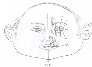 Schéma des différentes fentes rares selon Tessier (d'après : Tessier P. Chirurgie plastique orbitopalpébrale: nouvelle classification anatomique des fentes faciales. Paris: Masson Edit 1977)