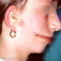 Fente 7 de Tessier (macrostomie) unilatérale, avec enchondrome prétragien