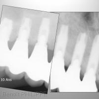 Fig. 13 : Contrôle radiologique à 10 ans