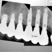 Fig. 14 : Contrôle radiologique à 12 ans