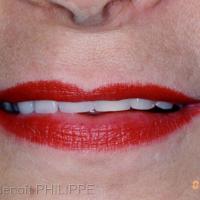 Fig. 20 : Soutien de la lèvre supérieure, Bosse canine