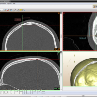 Fig. 31 et 32 : Analyse 3D interactive avant décision opératoire