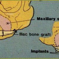 3. Ostéosynthèse au fils d'acier. Keller, 1987.