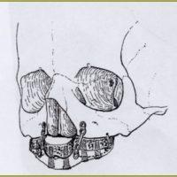 4. Ostéosynthèse par plaques titane modelables. Sailer, 1988.