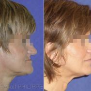2. Il convient d'avancer le maxillaire atrophié vers l'avant (pour corriger le visage concave) et vers le bas (pour recouvrer la dimension verticale initiale précédent l'édentement et la perte osseuse).