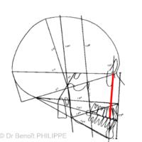 2. Classe I squelettique. La ligne f1M passant par le point NP (Naso-Palatin) et symbolisant le positionnement maxillaire est alignée avec la ligne FI.