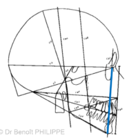 3. Classe I squelettique. La ligne f1m passant par le point M (Point Menton) et symbolisant le positionnement mandibulaire est alignée avec la ligne FI.