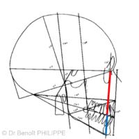 4. Classe I squelettique. Les lignes maxillaire (f1M) et mandibulaire (f1m) se superposent avec la ligne d'équilibre crânio-faciale F1 (ici invisible car recouverte par les lignes f1M et f1m).