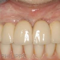 Figure 5 - Réhabilitation finale. Résultat à quatre ans. Prothèse sur implants et parodontologie : Dr Arno Caillère, Elche (Espagne).