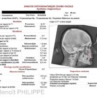 6. Même patiente (classe II par proversion maxillaire). Synthèse sagittale de l'analyse architecturale de Jean Delaire.