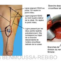 1. Tracé du lambeau et visualisation de la perforante musculo-cutanée [8].