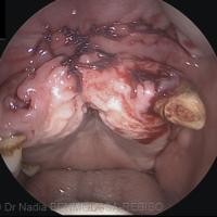 1. Photographie de la tumeur lors de la panendoscopie.