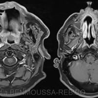 5. Scanner du massif facial, en coupes coronales, passant par la lyse osseuse d'origine tumorale du prémaxillaire et montrant que cette dernière reste bien à distance des zygomas et des canaux infra-orbitaires.