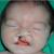 Diagnostic échographique anténatal des fentes labiopalatines