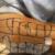 3a. Glossectomie totale reconstruite par un lambeau antérolatéral de cuisse selon la méthode dite du «triptyque» : dessin sur la cuisse, conformation sur site et mise en place en bouche.