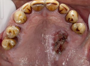 Palatine lesion : initiale situation