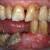 Prise en charge d'une ostéonécrose mandibulaire #1