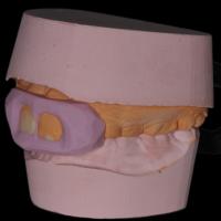 une clé en silicone rigide est fabriquée à partir du wax up afin d' enregistrer la forme des futures restaurations. Elle englobe aussi l'arcade inferieure en occlusion autorisant ainsi le jeune patient à garder les dents serrées pendant la procédure de stratification
