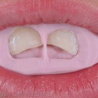 les anciennes restaurations sont déposées, les dents sont préparées et la clé peut être mise en place
