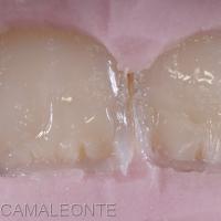les masses de composite émail, dentine, les zones opalescentes, les caractérisations sont déposées directement dans la clé qui va guider la réalisation et assurer la confection des restaurations prévues