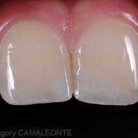 après polissage, on note la bonne intégration des composites sur 11 et 21
